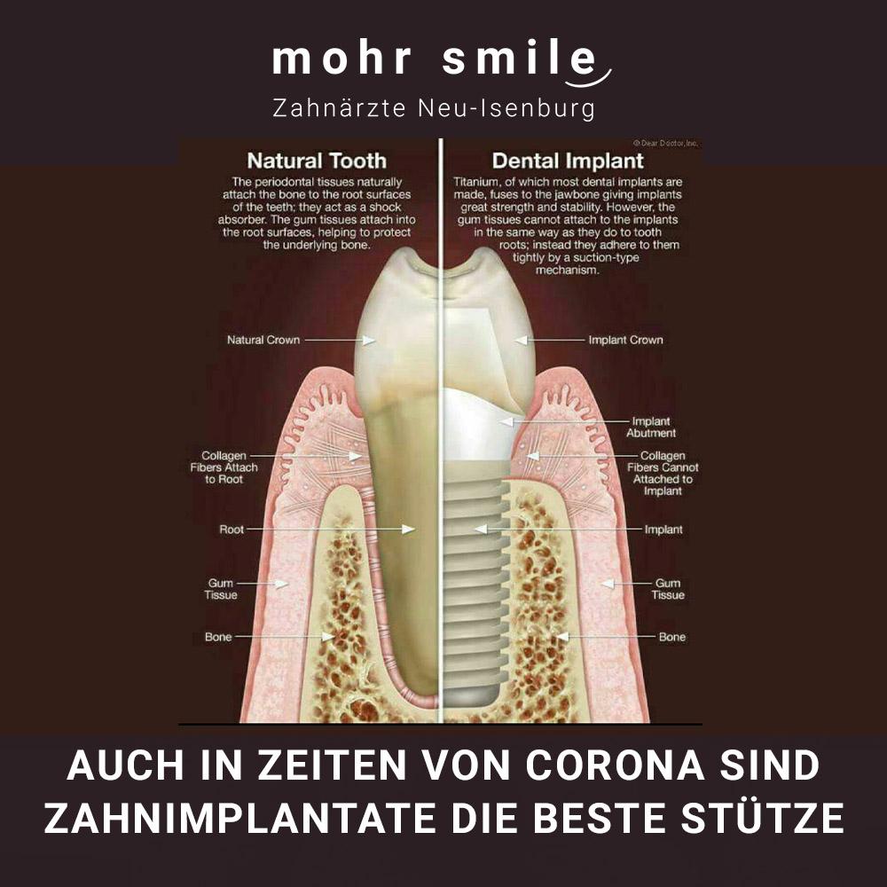 Zahnimplantate - Zahnarztpraxis in Neu Isenburg - mohr smile